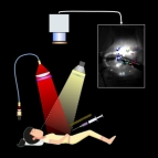 an illustration of a patient being injected with a flueurescent solitution and camera overhead that images the patient's tissue