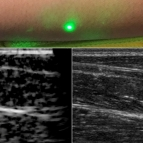 An ultrasound technique uses lasers to produce images beneath the skin without making contact. The new laser ultrasound technique was used to produce an image (left) of a human forearm (above), which was also imaged using conventional ultrasound (right).